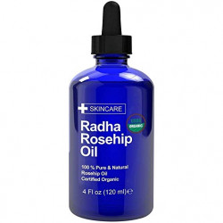 שמן ורדים לטיפול בצלקות Radha Beauty USDA Certified Organic 100 Pure Oil